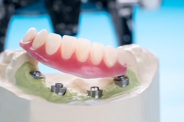 Can Implant Supported Dentures Improve Chewing Function?