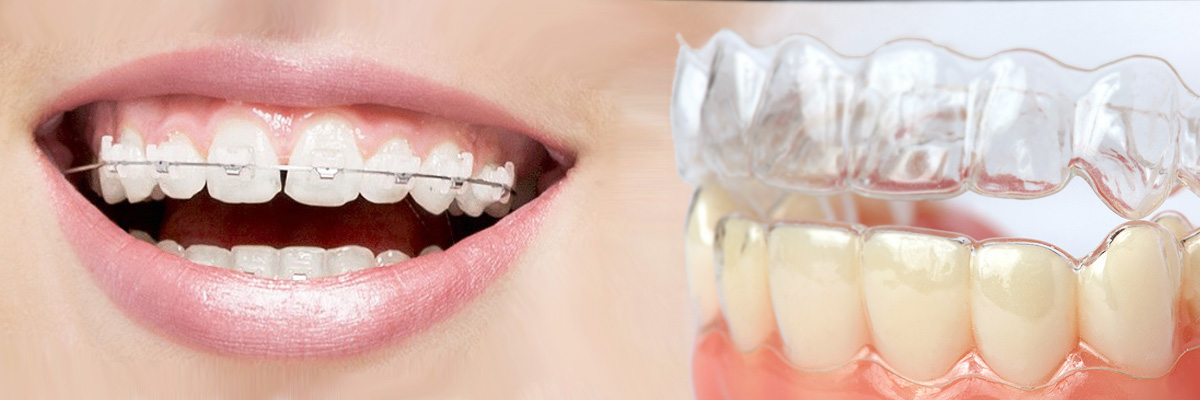 Englewood Invisalign vs Traditional Braces