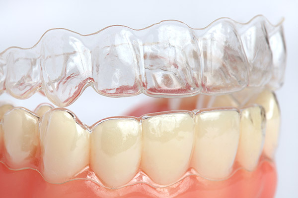 The Beginner&#   ;s Guide To Invisalign